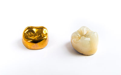 Illustration of a gold and porcelain dental crown